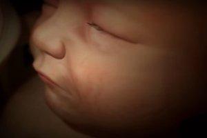 Czy płód śni?