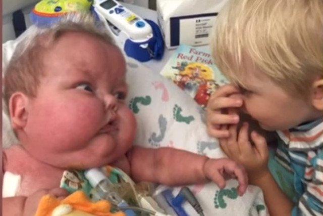 Leo niemal codziennie odwiedzał w szpitalu jego starszy brat.