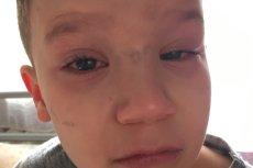 6 letni syn pani Magdaleny przez 3 tygodnie musiał nosić opatrunek.